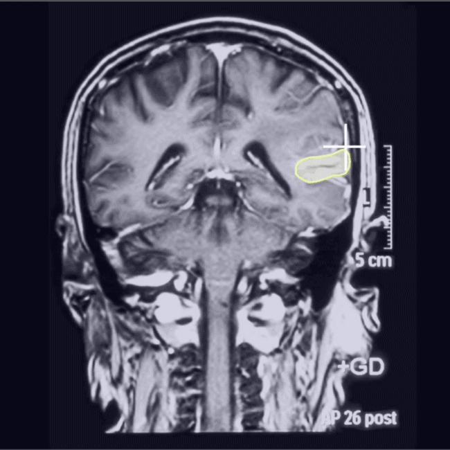 Medical AI - skull